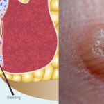 Hemorrhoids or warts pictures
